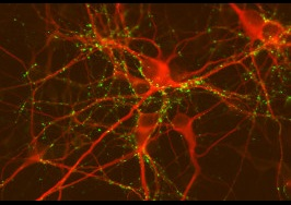 Striatium neurons in mouse brains Google Images