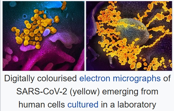 Images of SARS-CoV0-2 and Human Cells Wikipedia